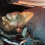 【閲覧注意】車に轢かれて左の目玉が飛び出してしまった男のグロ動画。