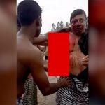 【閲覧注意】事故で右腕がグチャグチャになり苦しそうに呼吸する男性のグロ動画。