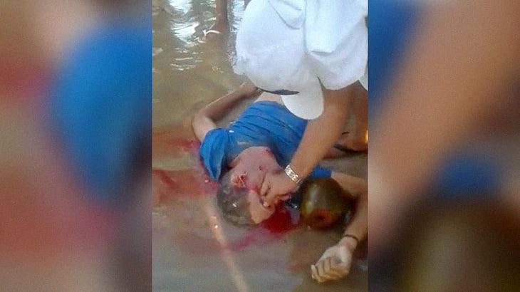 【閲覧注意】ビーチで殺した相手の目に指を突っ込んでグリグリするグロ動画。