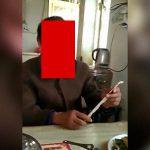【衝撃映像】口の皮膚がデロンデロンになってしまった男性。