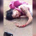 【閲覧注意】銃で撃たれた男性、口が破壊されてしまったグロ動画。