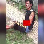 【閲覧注意】警察から逃げ回っていた男性、なぜか右脚と左腕から骨が飛び出してしまったグロ動画。