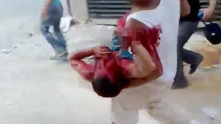 【閲覧注意】砲撃を受けて右手を吹き飛ばされた男のグロ動画。