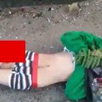 【閲覧注意】車に轢かれた男性の太ももから骨が突き出てしまったグロ動画。