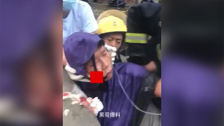 【閲覧注意】バイクで転倒した男性、右頬に鉄筋が突き刺さってしまったグロ動画。