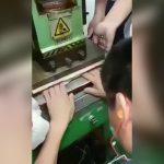 【閲覧注意】プレス機に両手の指を潰され切断された男性のグロ動画。