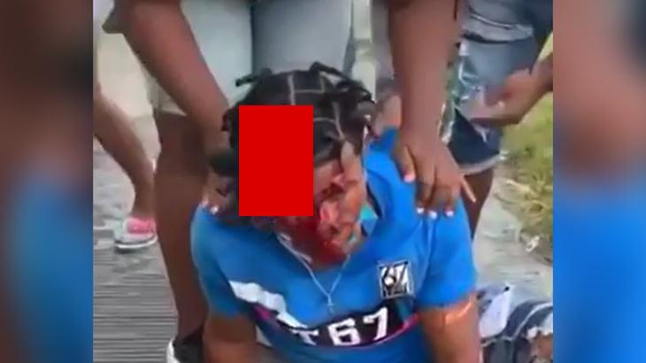 【閲覧注意】事故で頭皮がベロンとめくれてしまった男性のグロ動画。