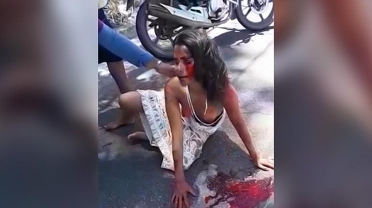 バイク事故で血を流しオッパイ丸出しの状態で意識朦朧となった女の子。