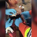 【閲覧注意】列車と衝突した男性の千切れてしまった右腕を止血処置するグロ動画。