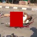 【閲覧注意】事故で下半身が無くなってしまった男性が上半身を動かすグロ動画。