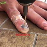 【閲覧注意】内出血した爪にドリルで穴を開けて血を抜くグロ動画。