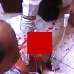 【閲覧注意】事故で両目が無くなってしまった男性を緊急治療するグロ動画。