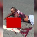 【閲覧注意】事故で左腕と左脚の骨が飛び出してしまった男性のグロ動画。