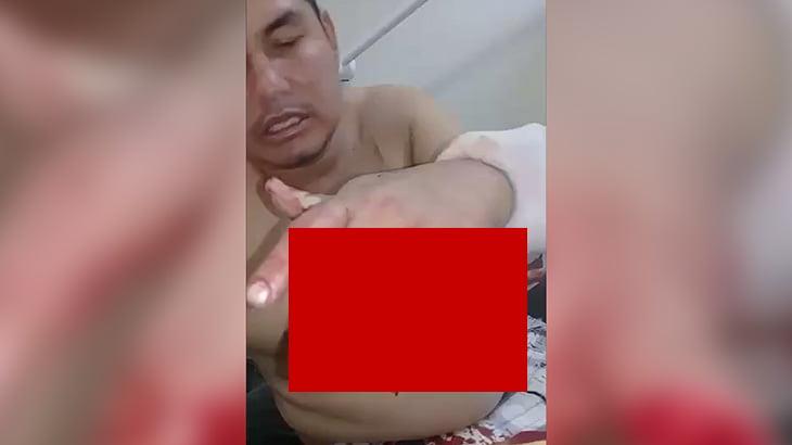 【閲覧注意】左手が大きく切り裂かれてしまった男性のグロ動画。