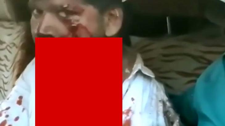 【閲覧注意】事故で左胸の肉をえぐられてしまった男性、動く肺で見えてしまっているグロ動画。