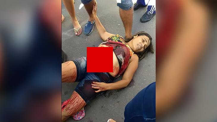 【閲覧注意】事故で腹から腸が飛び出してしまった女性のグロ動画。