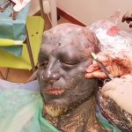 【衝撃映像】頭皮にインプラントを埋め込んで身体改造する男の手術映像。