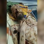 【閲覧注意】身体ガリガリで皮膚が腐り始めている男性、この状態でもまだ生きてる・・・。