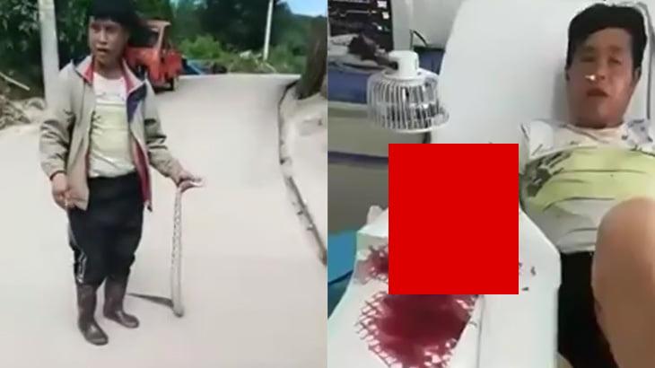 【衝撃映像】毒蛇に噛まれてしまった男性の腕、とんでもないことになってしまう・・・。