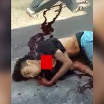 【閲覧注意】バイク事故で喉がスライスされてしまった男性、もうすぐ死ぬ・・・。