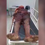 【閲覧注意】マチェーテで切り刻まれて死亡した男性を撮影したグロ動画。