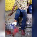 【閲覧注意】事故で右足を完全に破壊されてしまった男性。