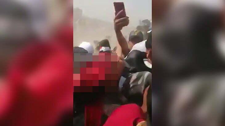 【閲覧注意】暴動に参加した男性、頭が破裂して死んでしまう・・・。