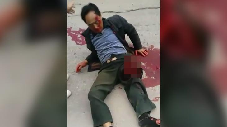 【閲覧注意】バイク事故で左太ももから骨が飛び出してしまった男性。
