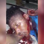 【閲覧注意】泥棒の男がマチェーテで首を切られて命が消える瞬間。