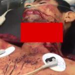 【閲覧注意】首を半分以上も切られてしまった男性を手術するグロ動画。