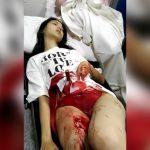 【閲覧注意】お腹にナイフが突き刺さっている可愛い女の子。