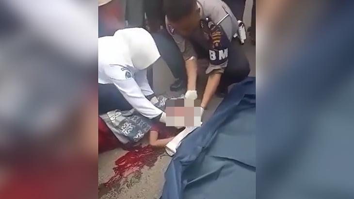 【閲覧注意】頭が割れて脳がこぼれてしまった子供の死体映像。