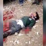【閲覧注意】列車に轢かれて両腕と右脚を切断されるも生き延びてしまった男性のグロ動画。