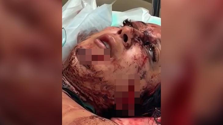 【閲覧注意】顔を刃物で切られてパックリ開いてしまった女性の映像。