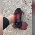 【閲覧注意】折れた左足首から血が流れ出る様子を撮影したグロ動画。