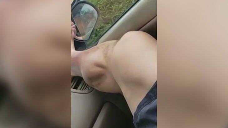 """【衝撃映像】ふくらはぎの筋肉がグニョグニョ動きまくる """"こむら返り"""" の映像。"""