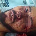 【閲覧注意】銃で襲われた男、左目を失うも生き延びる・・・。