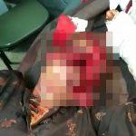 【超!閲覧注意】ピットブルに顔をグチャグチャにされてしまった女性、この状態でも生きてる・・・。