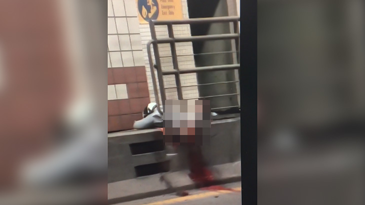 【閲覧注意】事故で下半身が切断されてしまったバイカーの映像。