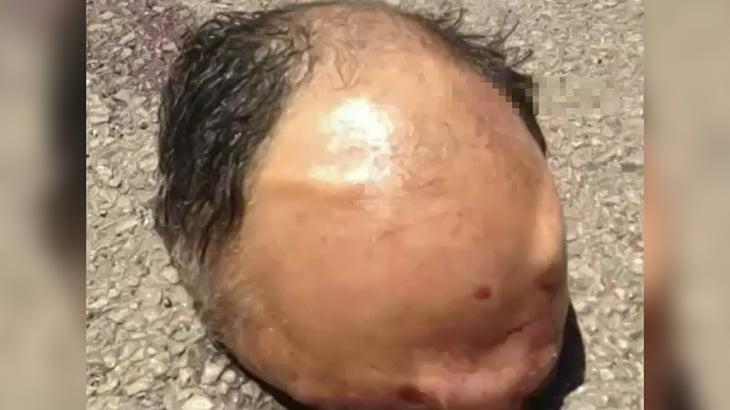 【閲覧注意】事故で死亡した男性、あまりにも頭をキレイに切断されてしまったグロ動画。