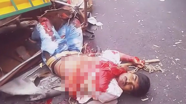 【閲覧注意】事故で内臓が露出した男性が大きく呼吸するグロ動画。