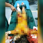 【閲覧注意】まだ幼い女の子、イカれた父親に身体中を刺されて殺されてしまったグロ動画。