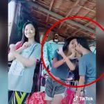 頭が繋がった結合双生児の女の子がカメラの前でダンスを踊る映像。