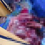 【超!閲覧注意】事故で身体グチャグチャになった男性の死体を回収する高画質グロ動画。