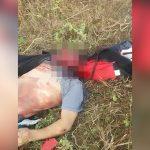 【閲覧注意】事故で顔が剥がれてしまった男性のグロ動画。
