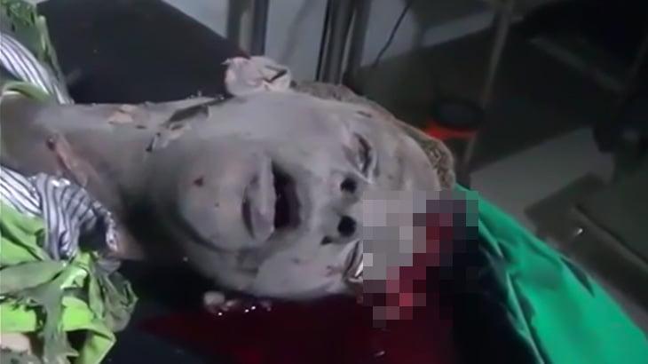 【閲覧注意】爆撃に巻き込まれ頭が割れた男性が最期の呼吸を繰り返すグロ映像。