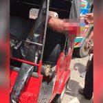 【閲覧注意】事故で右足首が切断されてしまったバイカーの映像。