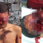 【閲覧注意】ショットガンで両目を吹き飛ばされた状態で生き延びてしまった男のグロ画像。