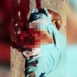 【閲覧注意】事故で顔が千切れてしまった男性の死体映像。