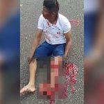 【閲覧注意】左脚をグチャグチャにされて途方に暮れる男性のグロ動画。